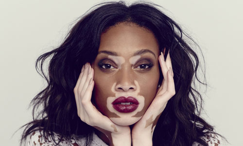 Pigmentation spots : why do we get them when we age? On possible causes and solutions of hypopigmentation such as vitiligo